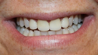 Closeup of woman's flawless smile after cosmetic dentistry