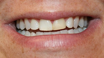 Closeup of woman's smile before cosmetic dentistry treatment