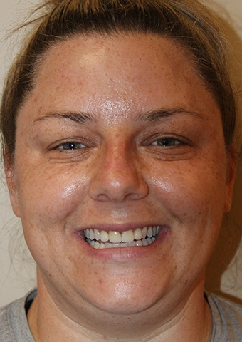 Woman's flawless smile after cosmetic dentistry