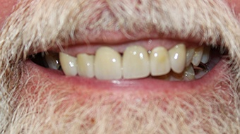 Closeup of older man's flawless smile after cosmetic dentistry