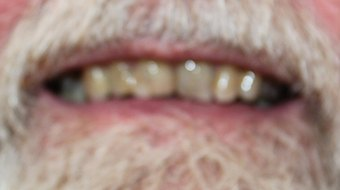Closeup of older man's smile before cosmetic dentistry treatment