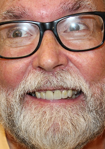 Older man's flawless smile after cosmetic dentistry