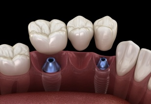 Animated implant supported fixed bridge placement