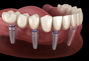 Animated implant supported denture placement
