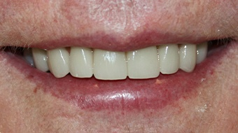 Closeup of older woman's flawless smile after cosmetic dentistry