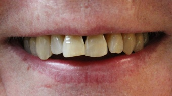 Closeup of older woman's smile before cosmetic dentistry treatment