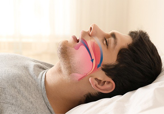 Snoring man with airway animation on his profile